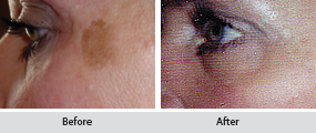 chemical peels, before and after images