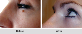 moles and skin tags removal, before and after images