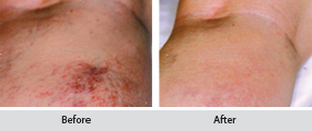 sclerotherapy thread vein removal, before and after images