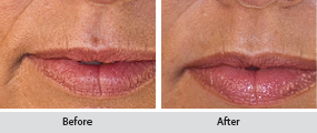juvederm dermal filler, before and after images