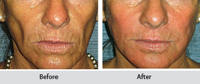 radiesse dermal filler, before and after images