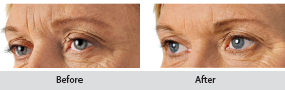 restylane dermal filler, before and after images