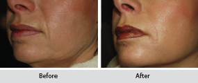 teosyal dermal filler, before and after images