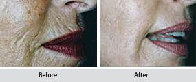 genuine dermaroller, before and after images