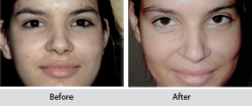 green peel, before and after images